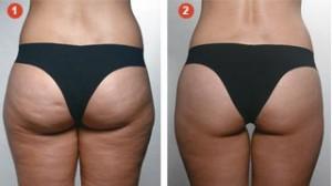 Manthus   Tratamento de Gordura Localizada e Celulite Manthus Antes e Depois 300x168