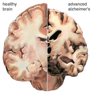 Doenças Raras Quase Sem Cura Mal De Alzheimer