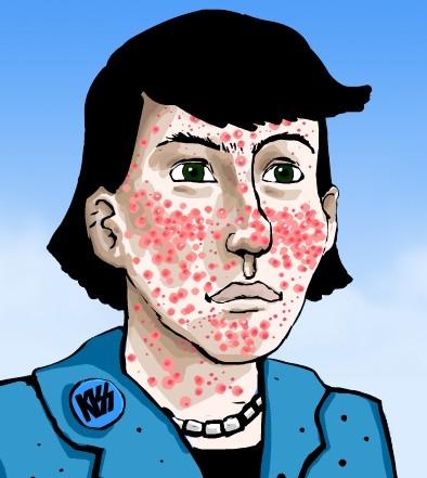 Anti Acne Dicas