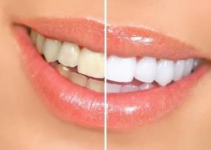 Clareamento Dental a Laser   Preço, Cuidados, Vantagens clareamento dental 300x214