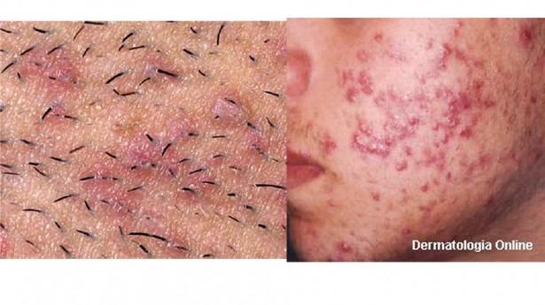 Alergia na virilha fotos 53