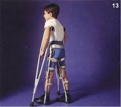 paralisia infantil