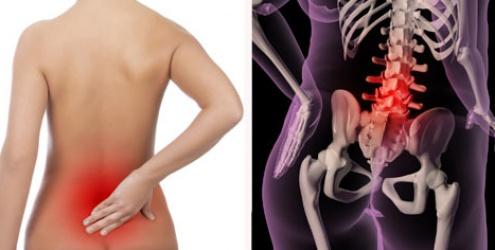 dor-lombar-osteoporose-6529
