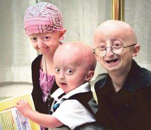 sinddrome de progeria