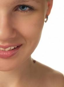 Como Acabar Com as Verrugas – Tratamento Caseiro e Dicas Verrugas Tratamento 219x300