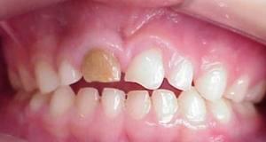 dentes_fraturados