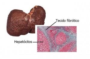 cirrose-hepática