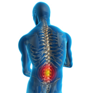 Artrose na Coluna – Quais São os Sintomas e Tratamento  Como Prevenir Dores na Coluna – Lordose e Artrose
