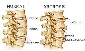 Artrose na Coluna – Quais São os Sintomas e Tratamento  Espondilose Cervical 300x181