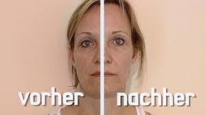 antes-e-depois-tratamento